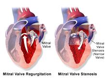 Bad Heart Valve Natural Remedies