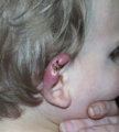 Buruli ulcer ear infant Australia.png