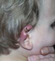 Buruli ulcer ear infant Australia.png