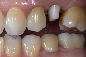 Abutment (dentistry) - Ceramic Abutment connected to implant