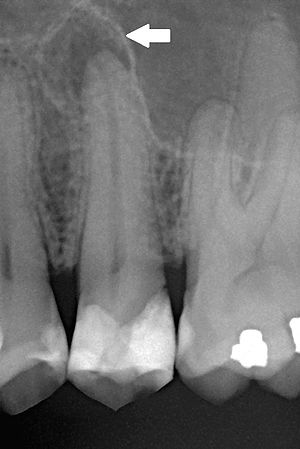 Chronic apical periodontitis.jpg