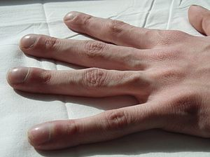"""""""Clubbing"""" of the fingers is a class..."""