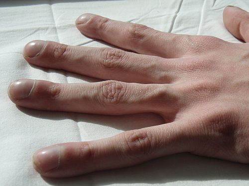 klubbformade naglar