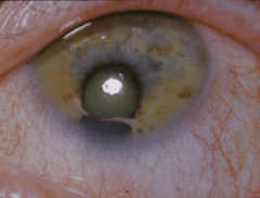 Coloboma-2.png