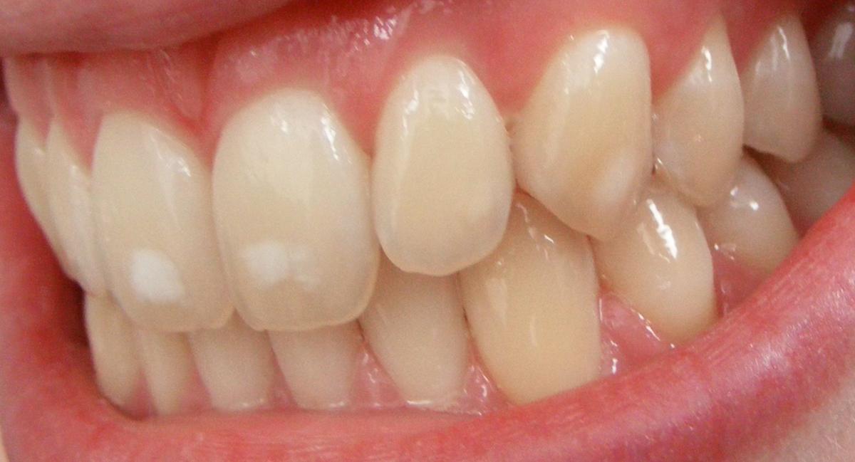 Dental Fluorosis Wikipedia
