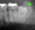 Distoangular impacted wisdom tooth.png