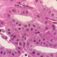 Histopathology of renal oncocytoma.jpg
