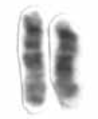 Chromosome 15 (human) - Human chromosome 15 pair after G-banding. One is from mother, one is from father.