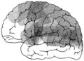 Isotope Localization of Infarcts in Aphasia.png