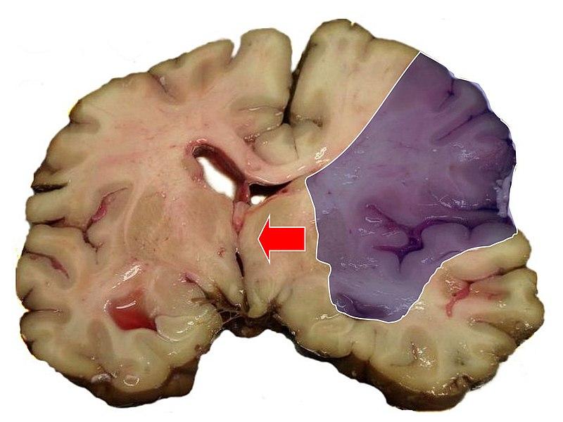 Udar mózgu niedokrwienny – rozległy zawał mózgu w obszarze tętnicy środkowej mózgu z masywnym obrzękiem półkuli i towarzyszącym przemieszczeniem struktur środkowych (strzałka)