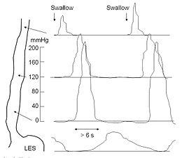 Esophageal manometry: MedlinePlus Medical Encyclopedia