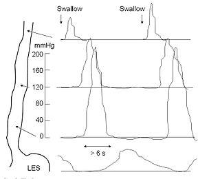 Esophageal motility study