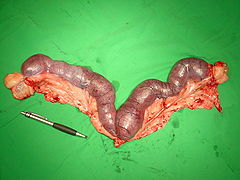 Chirurgisch entfernte Pyometra.