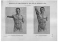 Richer - Anatomie artistique, 2 p. 112.png