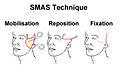 SMAS Facelift.jpg