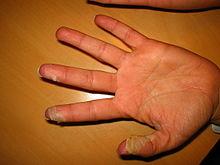 Causes For Kawasaki Disease