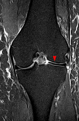 Discoid meniscus - Discoid meniscus on coronal proton-density weighted MRI