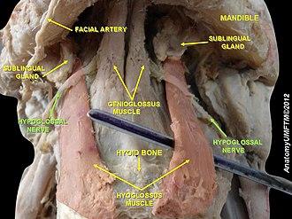 Hypoglossal nerve - Image: Slide 12ww
