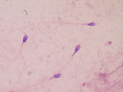 Sperm stained.JPG
