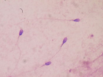 English: Human sperm stained for semen quality...