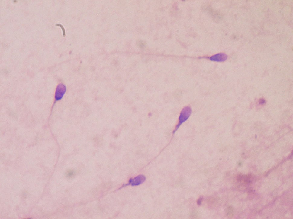 Sperm stained