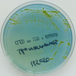Sphingomonas paucimobilis on CLED Agar.jpg