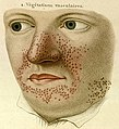 TuberousSclerosis-Rayer-ColourSmall.jpg