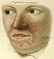 "A sketch consisting only of the face and shirt collar. Across the nose, the cheeks adjacent to the nose and mouth, and the chin are numerous red pimples. Above are the words ""1. Végétations vasculaires."""