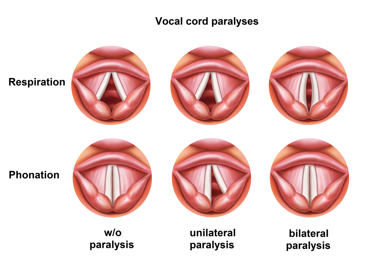 Vocal cord paralysis - Symptoms and causes - Mayo Clinic