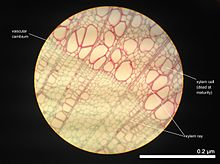 Tissue (biology) - Wikipedia Xylem Tissue Consists Of Cells That Include