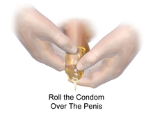 Condom Catheterization Method.png