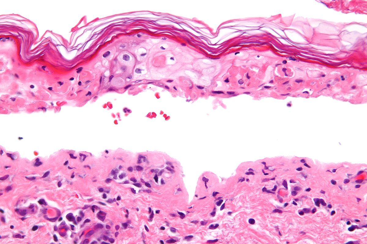 Erythema multiforme major - Wikipedia