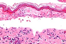 Confluent epidermal necrosis - very high mag.jpg
