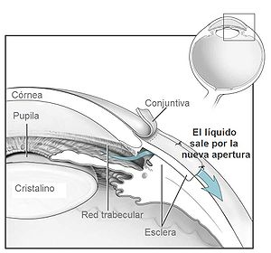 Conventional surgery to treat glaucoma