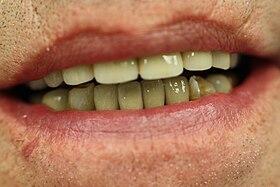 Textbook Of Complete Denture Prosthodontics Pdf For Free