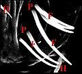Fusules épigastriques d' Araniella, détail.jpg