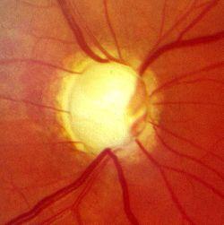 Glaukompapille2.jpg