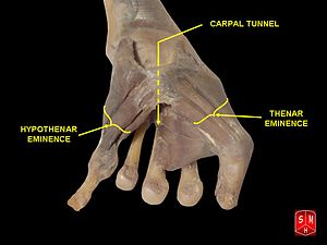 Carpal Tunnel And Thenar And Hypothenar Eminences