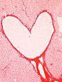 Heart ece 2.jpg
