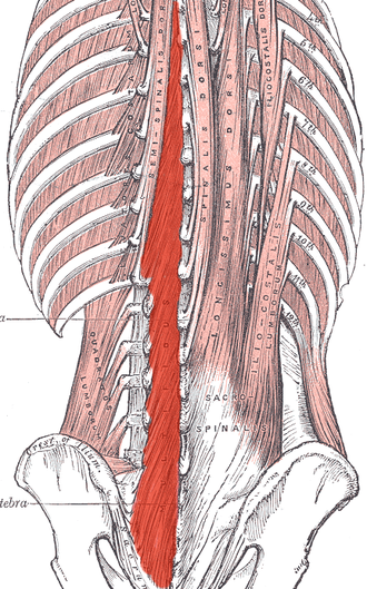 Multifidus muscle - Deep muscles of the back. (Multifidus shaded in red.)