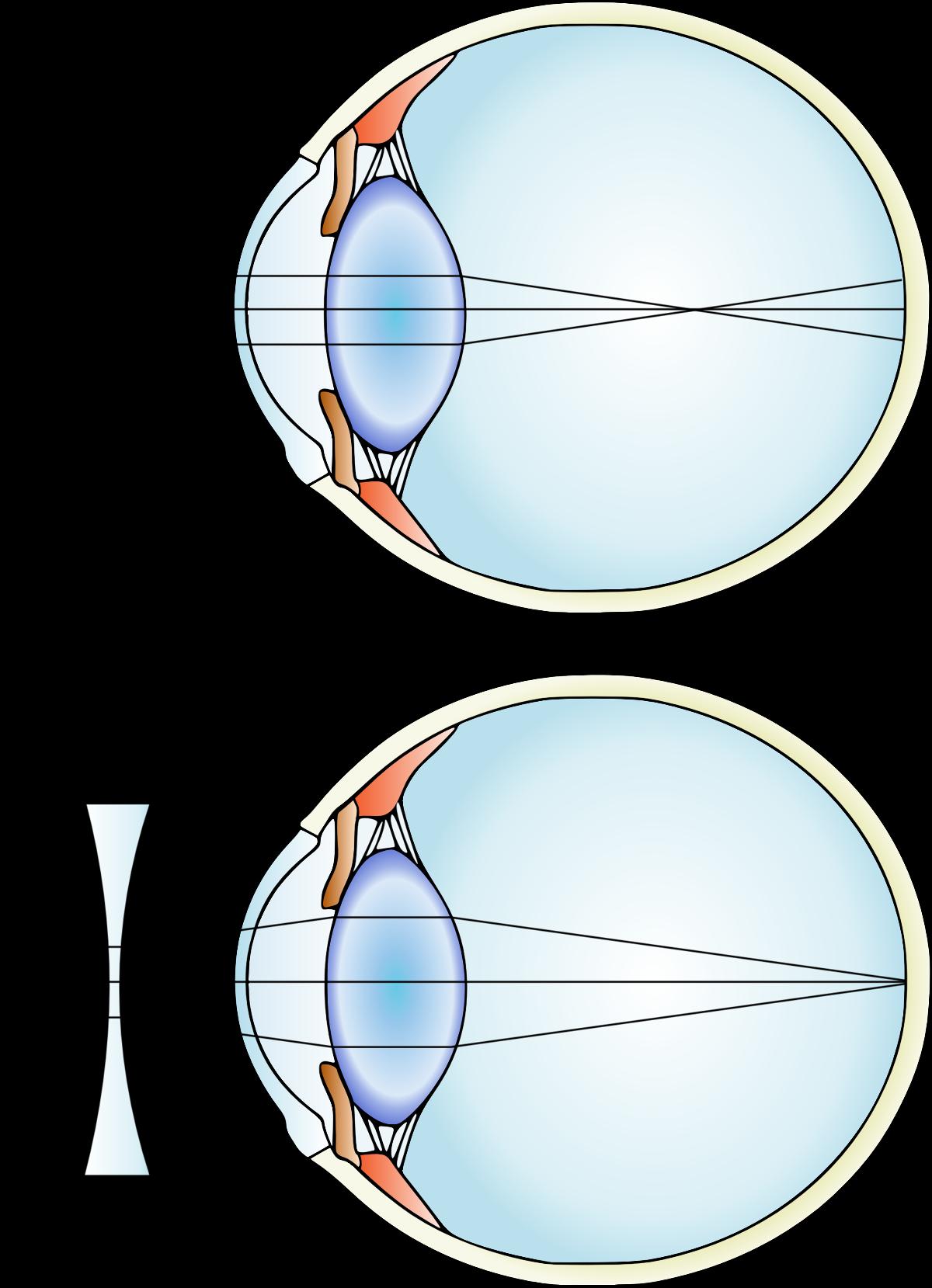 myopia ok terápia