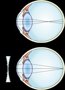Miopia progressiva