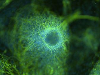 Neuron cluster.jpg