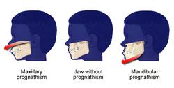 Prognathism3.png