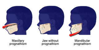 Prognathism Protrusion of the upper or lower human jaw