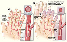 Raynaud syndrome - Wikipedia
