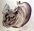 Stomach cancer illustration Wellcome L0014136.jpg