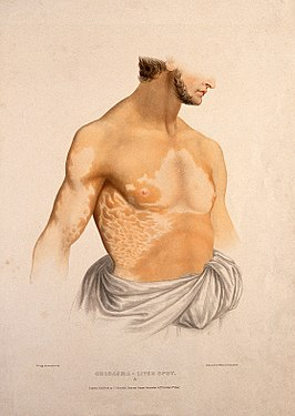 The naked torso of a man with a skin disease. Coloured litho Wellcome V0009860.jpg