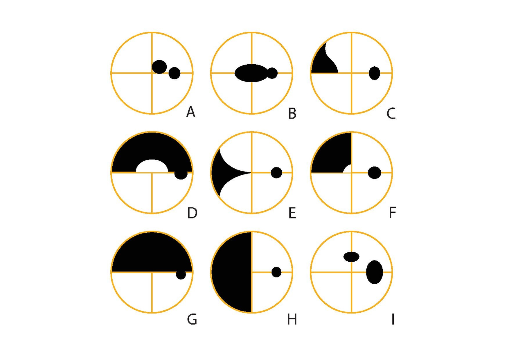 Humphrey visual field analyser wikipedia figure 5 types of visual field defects right eye a central scotoma b centrocaecal scotoma c nasal step d superior arcuate e nasal wedge defect nvjuhfo Gallery