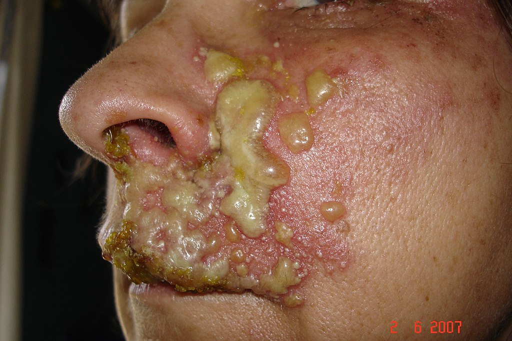 Shingles on Face | Shingles Pictures - Amoils.com